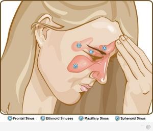 Sinusitis-Treatment
